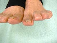 施術前のかなりきつく曲がった爪。