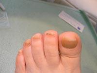 第2趾の巻き爪。