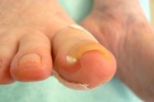 爪が食い込んで傷が出来る「陥入爪」。